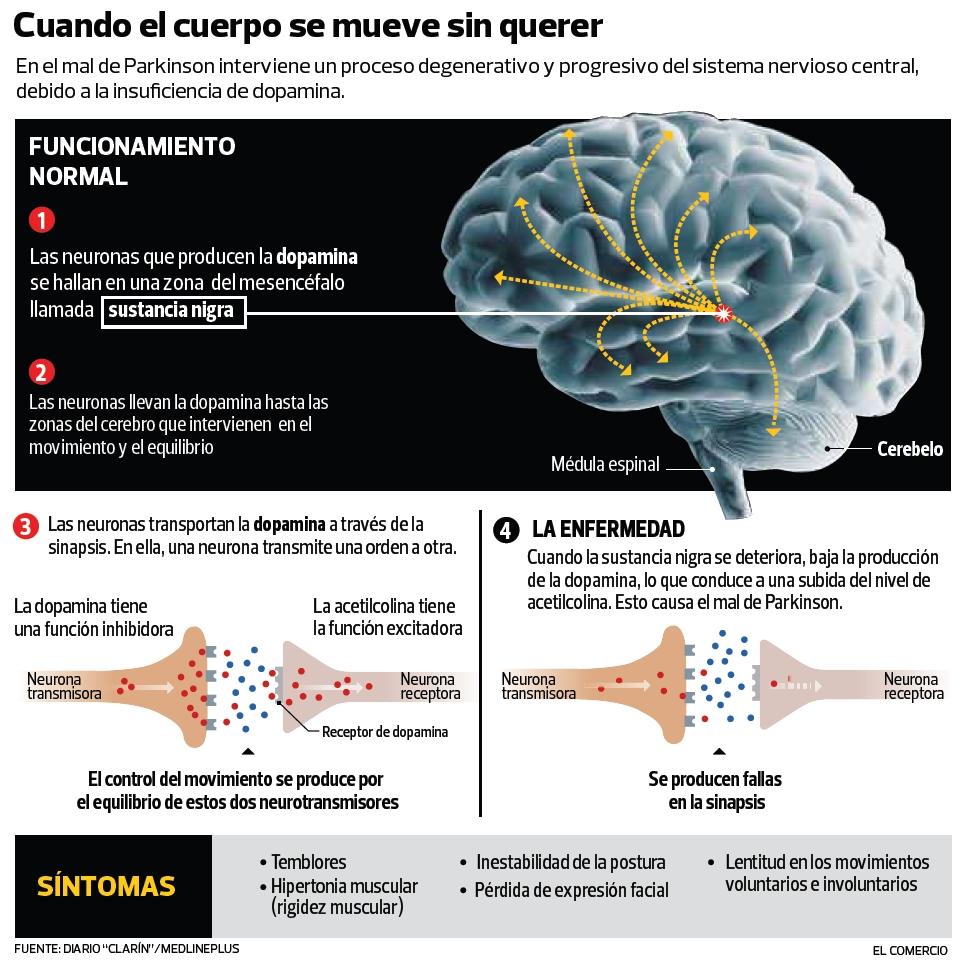 INFOGRAFÍA Parkinson GRANDE