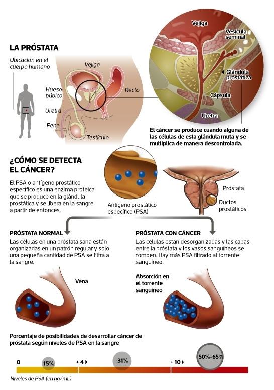 Las recomendaciones para la detección precoz del cáncer de la próstata han cambiado nuevamente. El influyente Grupo de Trabajo de Servicios de Medicina Preventiva del gobierno federal de los EE.UU. (USPSTF por sus siglas en inglés) acaba de publicar sus ultimas recomendaciones, las que modifican sustantivamente sus controversiales guías del año 2012, las que recomendaban que ningún hombre se haga el chequeo del cáncer de la próstata. (Infografía: Raúl Rodríguez)