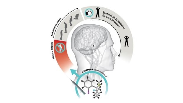 La ketamina es un medicamento que actúa sobre el sistema del glutamato, un neurotransmisor cerebral. Recordemos que muchos de los medicamentos que se usan para tratar problemas de salud mental, actúan a nivel de los llamados neurotransmisores, sustancias químicas cuya actividad determina el funcionamiento cerebral. (Infografía: Sergio Fernández/El Comercio)