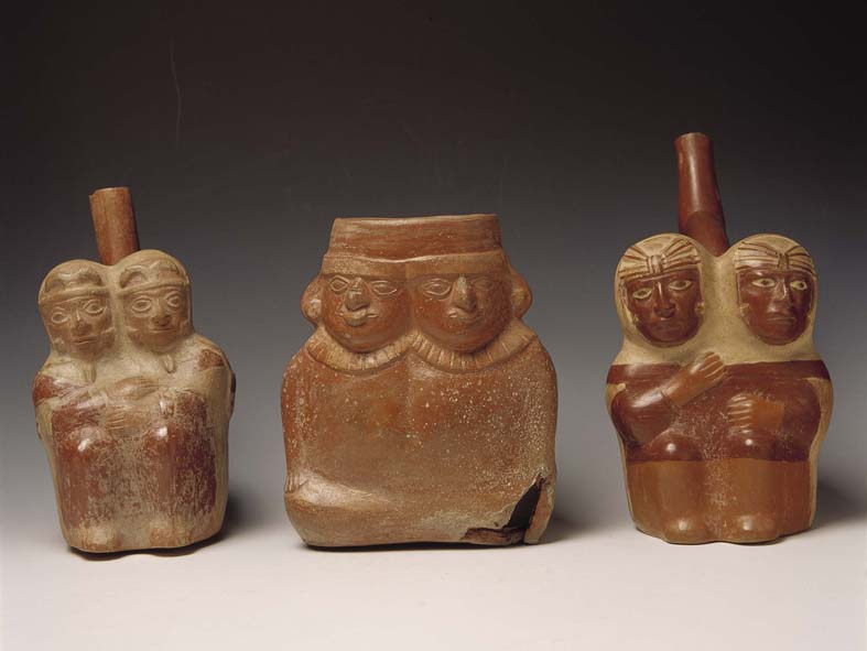 Uno de los casos más raros de gemelos siameses fue retratado hace varios siglos en una vasija cerámica prehispánica de la cultura Chimú.