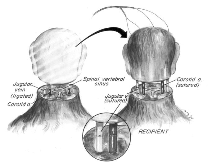 Esquema de cómo se realizó el trasplante de cabeza en monos. Fuente: Week in weird