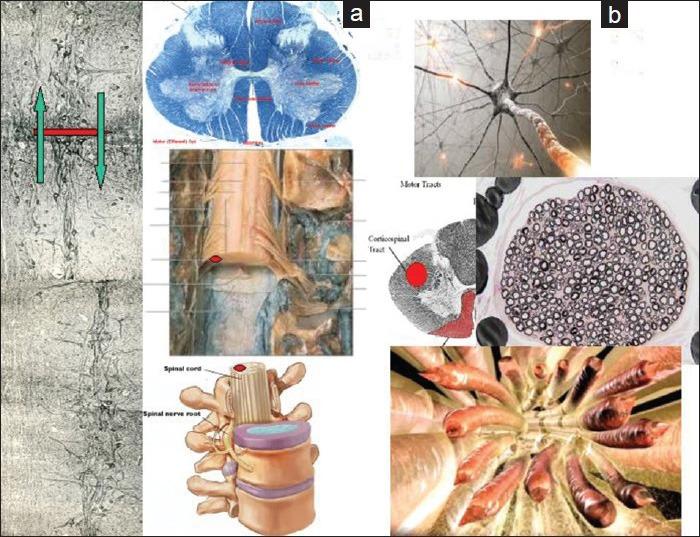 Diferentes vistas de la médula espinal. Fuente: Canavero (2015)