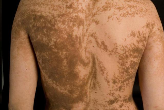 Manchas en la piel típico de un quimera. Fuente: A