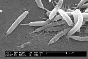 Bacteria responsable de úlceras estomacales presente en el agua potable