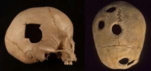 Los Incas fueron los mejores cirujanos de cráneo de la época