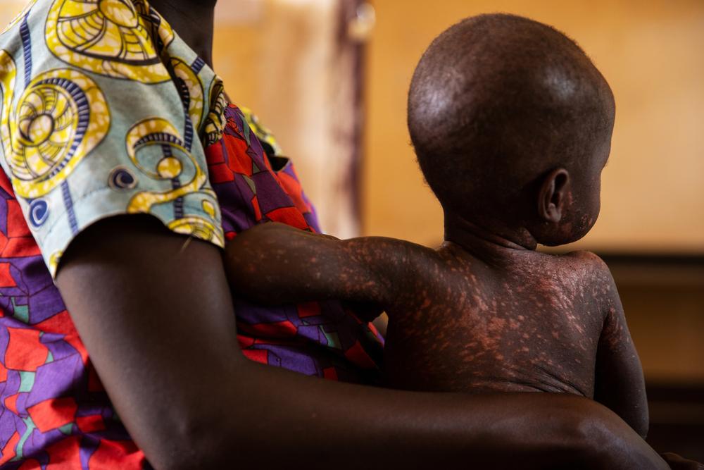 La historia de Merveille y cómo combatir una epidemia sarampión