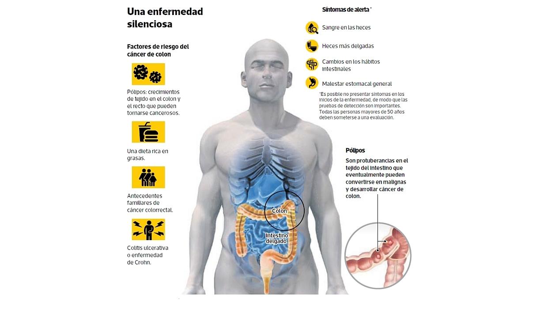 Las verdades sobre el cáncer de colon