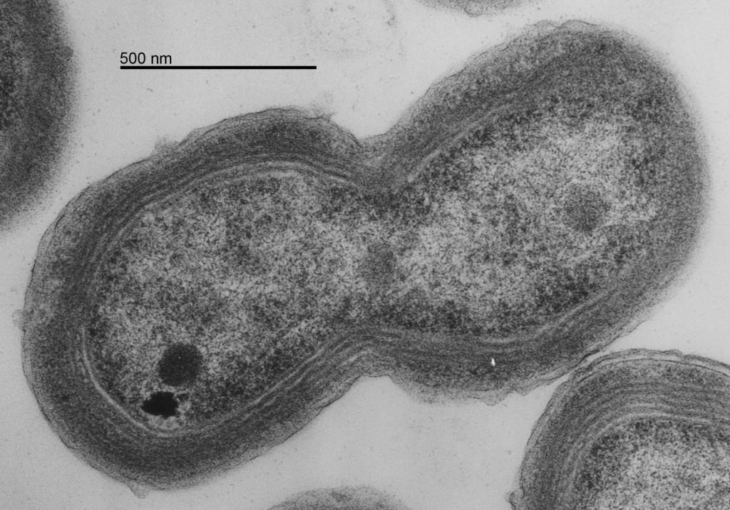 Fotografía de un Prochlorococcus. Fuente: MIT