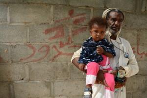 """Yemen: """"Muchos pacientes llegan demasiado tarde y mueren sin que podamos hacer nada"""""""